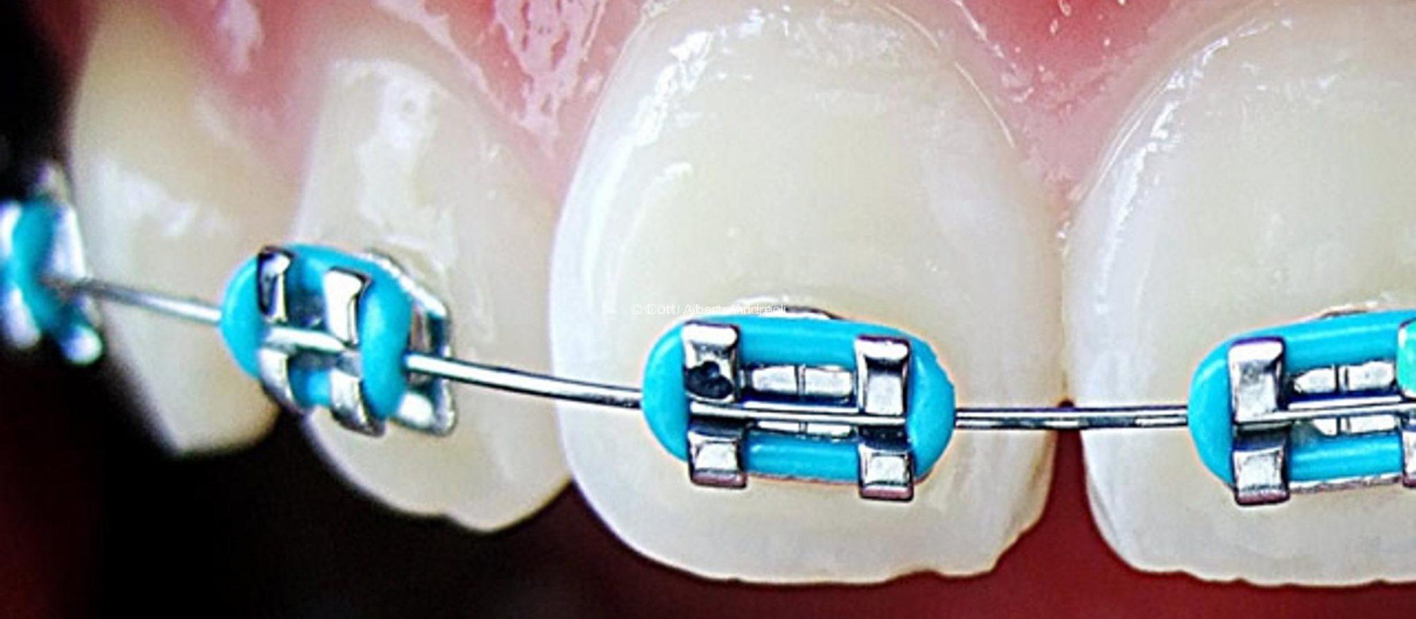 apparecchio-denti-bambini