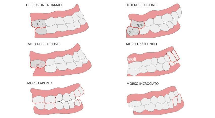 ortodonzia l'aquila