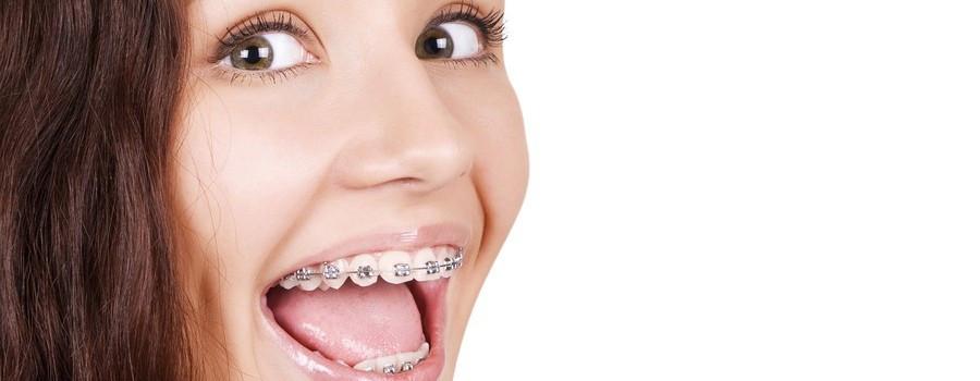 apparecchio denti l'aquila